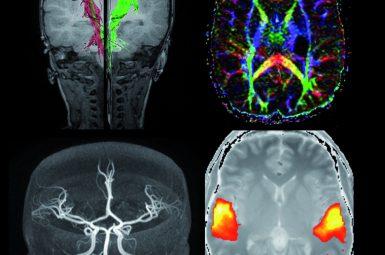 FDS-DB-cerveau-fonctionnelle