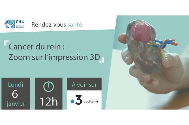 Cancer du rein - Zoom sur l'impression 3D - Reportage France 3 Aquitaine