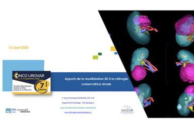 Intervention lors du Congrès Onco UroVar 2020